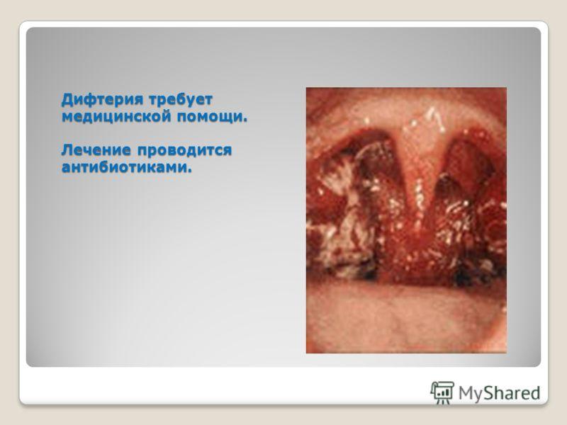 Дифтерия требует медицинской помощи. Лечение проводится антибиотиками.