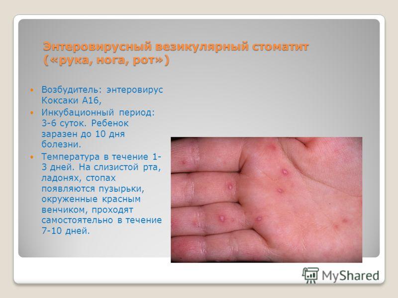 Энтеровирусный везикулярный стоматит («рука, нога, рот») Возбудитель: энтеровирус Коксаки А16, Инкубационный период: 3-6 суток. Ребенок заразен до 10 дня болезни. Температура в течение 1- 3 дней. На слизистой рта, ладонях, стопах появляются пузырьки,