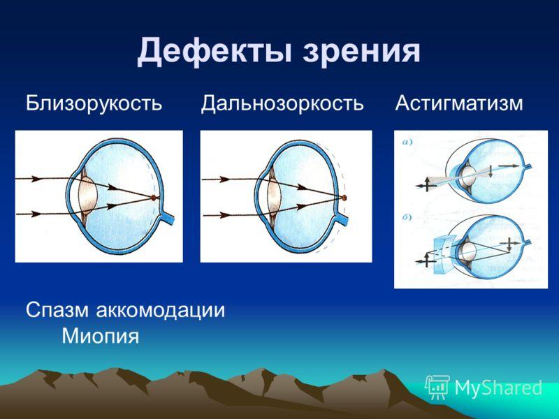 Дефекты зрения БлизорукостьДальнозоркостьАстигматизм Спазм аккомодации Миопия