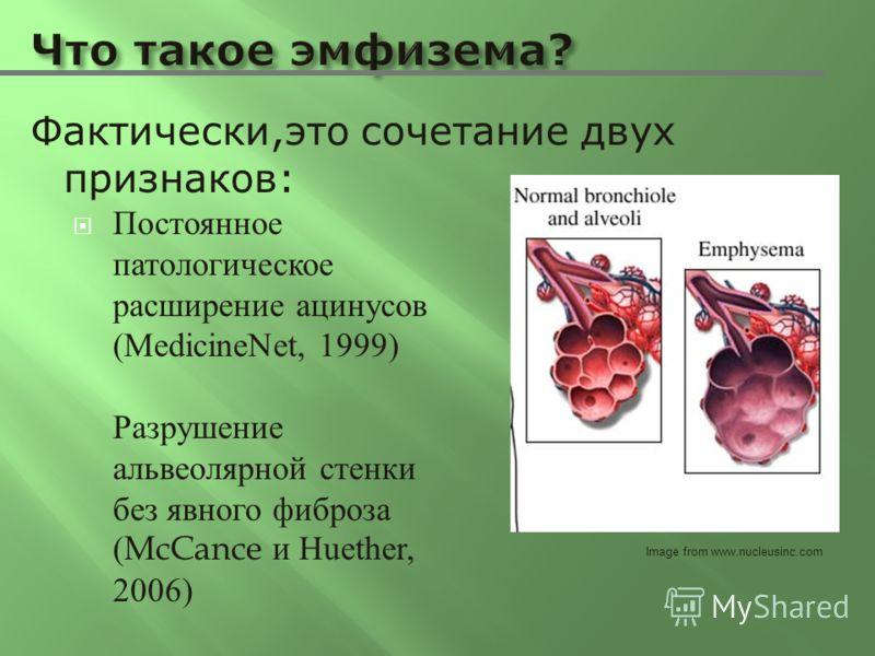 Постоянное патологическое расширение ацинусов (MedicineNet, 1999) Разрушение альвеолярной стенки без явного фиброза (McCance и Huether, 2006) Фактически,это сочетание двух признаков: Image from www.nucleusinc.com