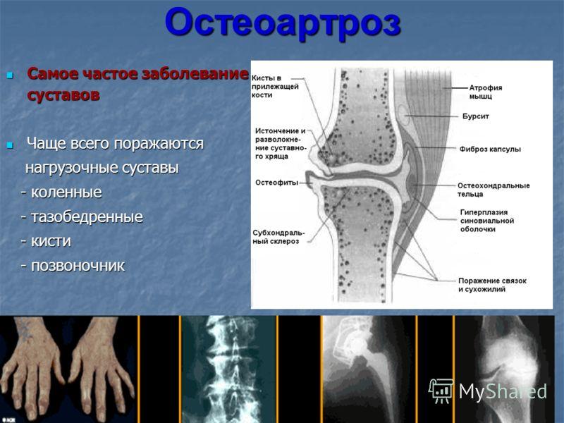 Остеоартроз Самое частое заболевание суставов Самое частое заболевание суставов Чаще всего поражаются Чаще всего поражаются нагрузочные суставы нагрузочные суставы - коленные - коленные - тазобедренные - тазобедренные - кисти - кисти - позвоночник -