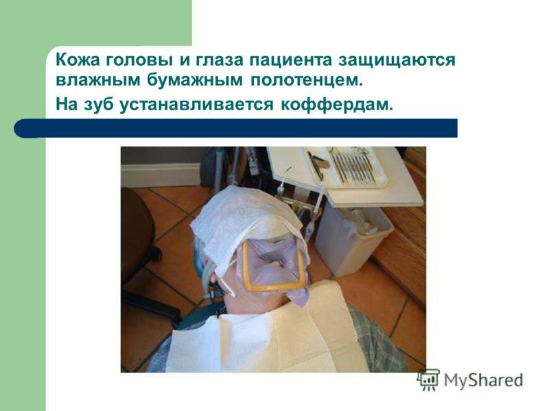 Кожа головы и глаза пациента защищаются влажным бумажным полотенцем. На зуб устанавливается коффердам.