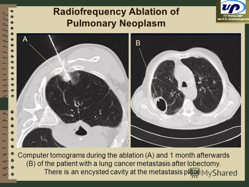 ГУ РНПЦ ОМР им Н.Н. Александрова Radiofrequency Ablation of Pulmonary Neoplasm Computer tomograms during the ablation (A) and 1 month afterwards (B) of the patient with a lung cancer metastasis after lobectomy. There is an encysted cavity at the meta
