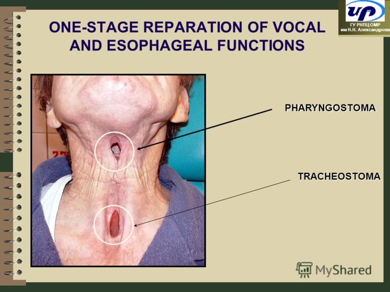 ГУ РНПЦ ОМР им Н.Н. Александрова ONE-STAGE REPARATION OF VOCAL AND ESOPHAGEAL FUNCTIONS PHARYNGOSTOMA TRACHEOSTOMA