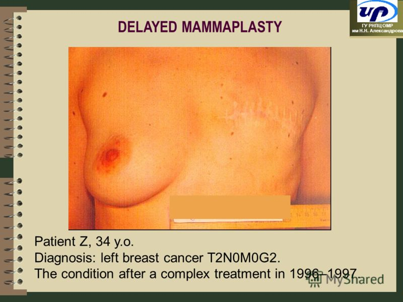 ГУ РНПЦ ОМР им Н.Н. Александрова Patient Z, 34 y.o. Diagnosis: left breast cancer T2N0M0G2. The condition after a complex treatment in 1996–1997. DELAYED MAMMAPLASTY