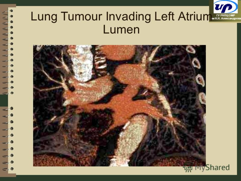 ГУ РНПЦ ОМР им Н.Н. Александрова Lung Tumour Invading Left Atrium Lumen