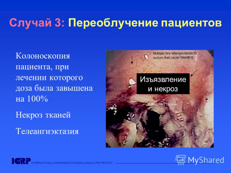 INTERNATIONAL COMMISSION ON RADIOLOGICAL PROTECTION Случай 3: Переоблучение пациентов Колоноскопия пациента, при лечении которого доза была завышена на 100% Некроз тканей Телеангиэктазия Изъязвление и некроз
