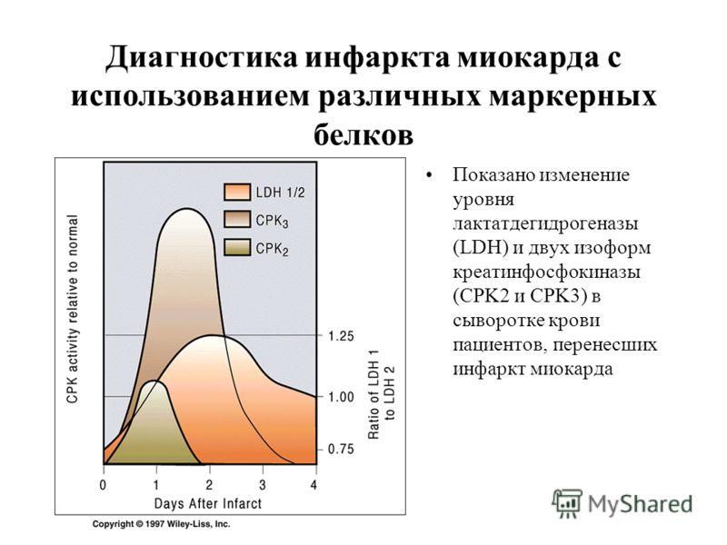 Диагностика инфаркта миокарда с использованием различных маркерных белков Показано изменение уровня лактатдегидрогеназы (LDH) и двух изоформ креатинфосфокиназы (CPK2 и CPK3) в сыворотке крови пациентов, перенесших инфаркт миокарда
