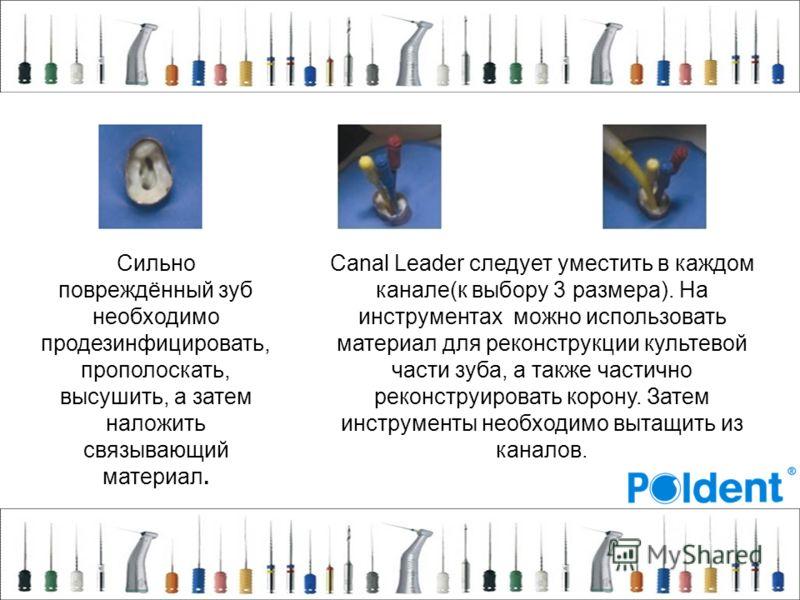 Сильно повреждённый зуб необходимо продезинфицировать, прополоскать, высушить, а затем наложить связывающий материал. Canal Leader следует уместить в каждом канале(к выбору 3 размера). На инструментах можно использовать материал для реконструкции кул