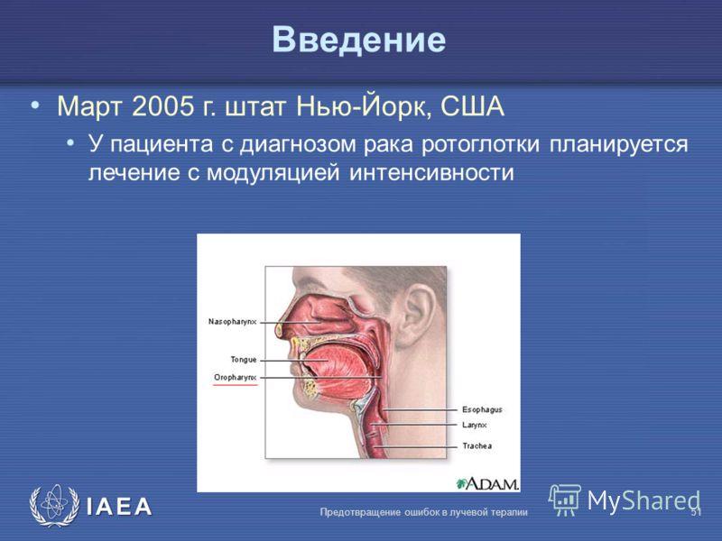 IAEA Предотвращение ошибок в лучевой терапии51 Bведение Март 2005 г. штат Нью-Йорк, США У пациента с диагнозом рака ротоглотки планируется лечение с модуляцией интенсивности