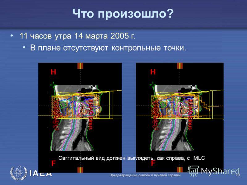 IAEA Предотвращение ошибок в лучевой терапии63 Что произошло? 11 часов утра 14 марта 2005 г. В плане отсутствуют контрольные точки. Саггитальный вид должен выглядеть, как справа, с MLC