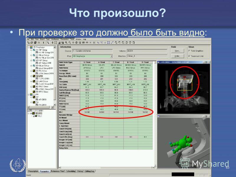 IAEA Предотвращение ошибок в лучевой терапии65 Что произошло? При проверке это должно было быть видно: