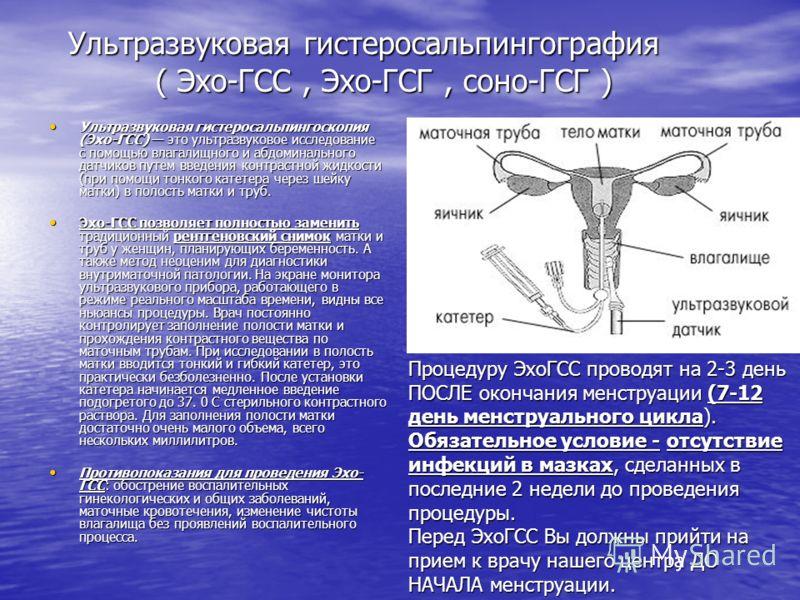 Ультразвуковая гистеросальпингография ( Эхо-ГСС, Эхо-ГСГ, соно-ГСГ ) Ультразвуковая гистеросальпингоскопия (Эхо-ГСС) это ультразвуковое исследование с помощью влагалищного и абдоминального датчиков путем введения контрастной жидкости (при помощи тонк