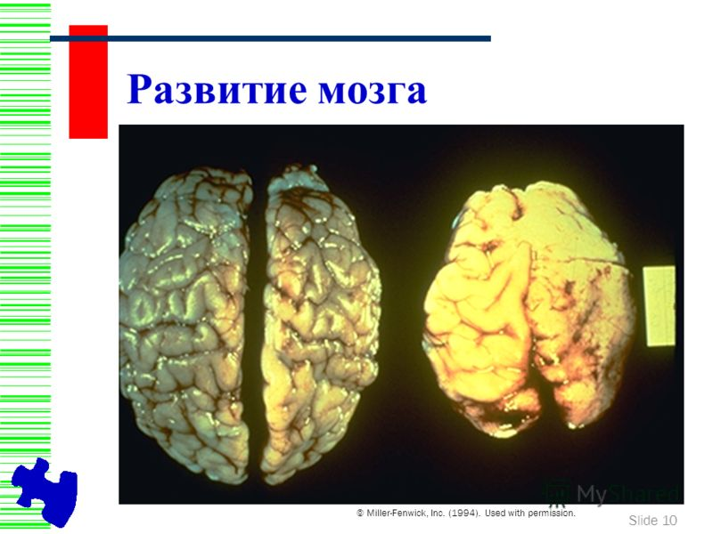 Slide 10 Развитие мозга © Miller-Fenwick, Inc. (1994). Used with permission.