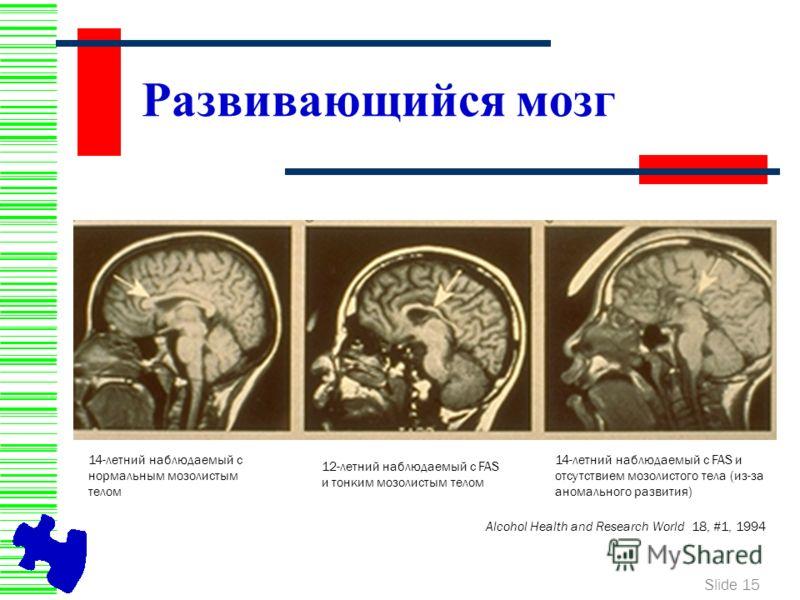 Slide 15 Развивающийся мозг Alcohol Health and Research World 18, #1, 1994 14-летний наблюдаемый с нормальным мозолистым телом 12-летний наблюдаемый с FAS и тонким мозолистым телом 14-летний наблюдаемый с FAS и отсутствием мозолистого тела (из-за ано