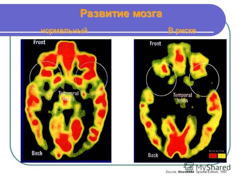 Развитие мозга Source: Newsweek Special Edition, 1997 нормальный В риске