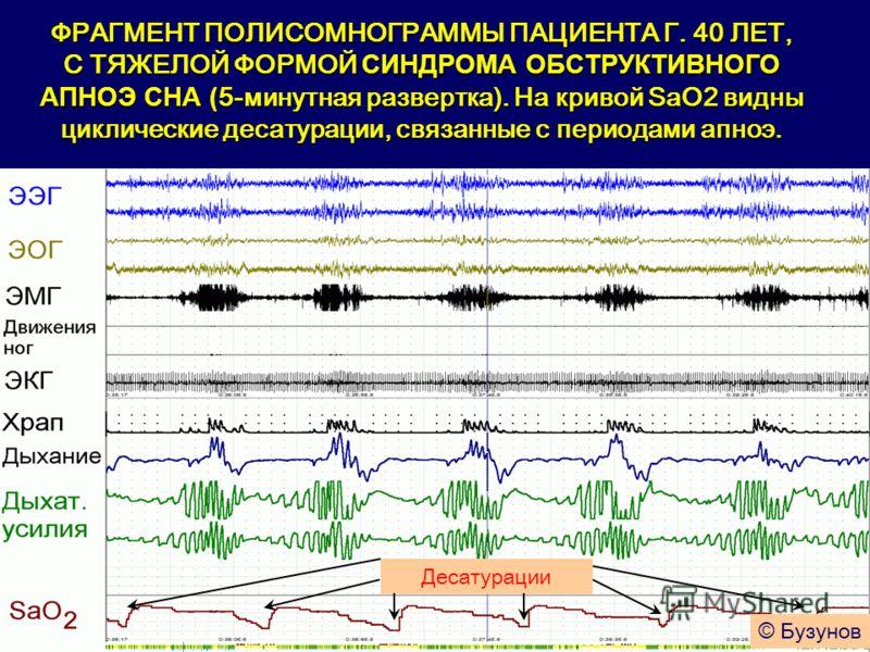 ФРАГМЕНТ ПОЛИСОМНОГРАММЫ ПАЦИЕНТА Г. 40 ЛЕТ, С ТЯЖЕЛОЙ ФОРМОЙ СИНДРОМА ОБСТРУКТИВНОГО АПНОЭ СНА ( 5-минутная развертка). На кривой SaO2 видны циклические десатурации, связанные с периодами апноэ. Десатурации © Бузунов