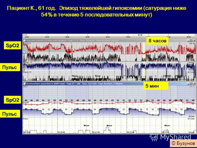 Пациент К., 61 год. Эпизод тяжелейшей гипоксемии (сатурация ниже 54% в течение 5 последовательных минут) Пульс SpO2 Пульс SpO2 5 мин 8 часов © Бузунов