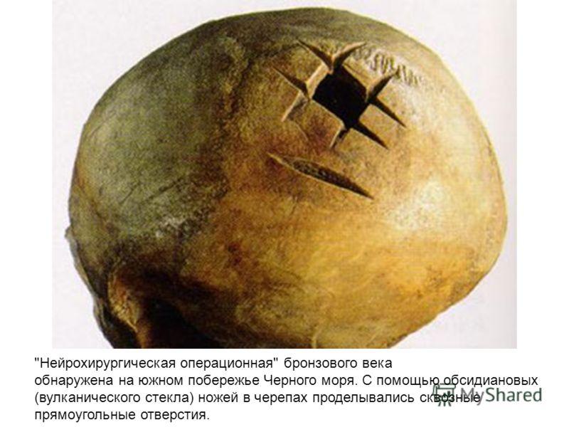 Нейрохирургическая операционная бронзового века обнаружена на южном побережье Черного моря. С помощью обсидиановых (вулканического стекла) ножей в черепах проделывались сквозные прямоугольные отверстия.