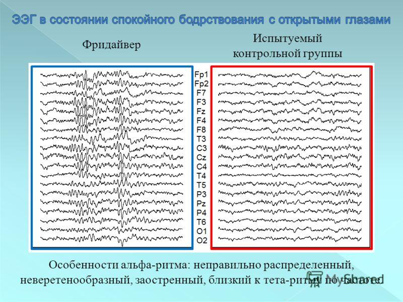Фридайвер Испытуемый контрольной группы Особенности альфа-ритма: неправильно распределенный, неверетенообразный, заостренный, близкий к тета-ритму по частоте.