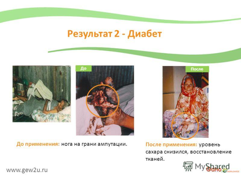 www.gew2u.ru Результат 2 - Диабет После применения: уровень сахара снизился, восстановление тканей. До применения: нога на грани ампутации. До После