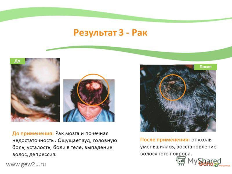 www.gew2u.ru Результат 3 - Рак После применения: опухоль уменьшилась, восстановление волосяного покрова. До применения: Рак мозга и почечная недостаточность. Ощущает зуд, головную боль, усталость, боли в теле, выпадение волос, депрессия. До После