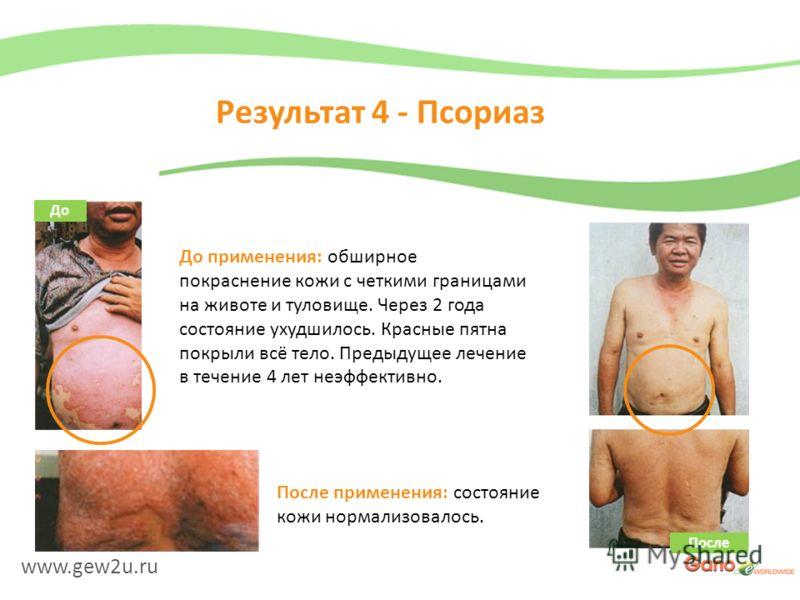 www.gew2u.ru Результат 4 - Псориаз После применения: состояние кожи нормализовалось. До применения: обширное покраснение кожи с четкими границами на животе и туловище. Через 2 года состояние ухудшилось. Красные пятна покрыли всё тело. Предыдущее лече