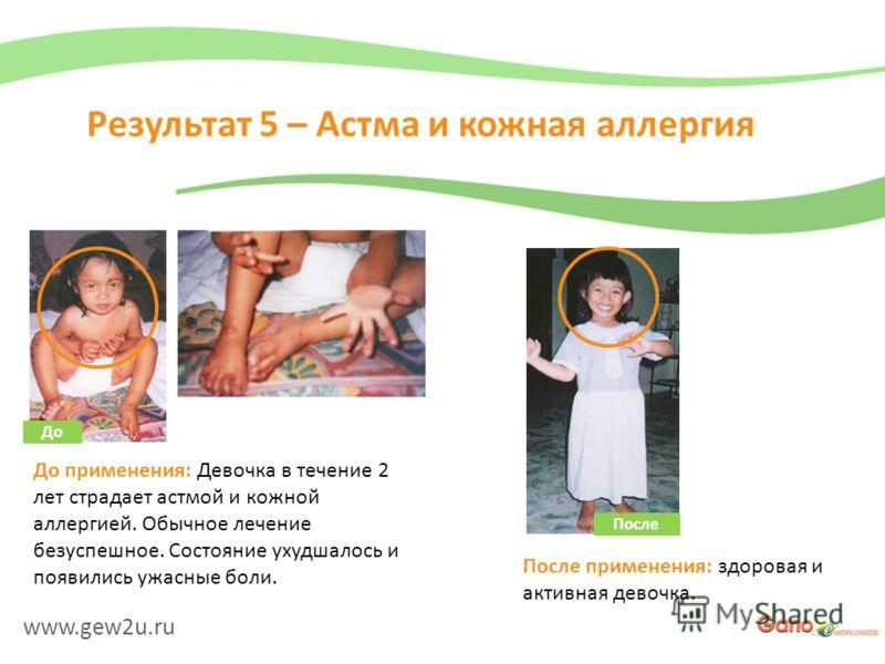 www.gew2u.ru Результат 5 – Астма и кожная аллергия После применения: здоровая и активная девочка. До применения: Девочка в течение 2 лет страдает астмой и кожной аллергией. Обычное лечение безуспешное. Состояние ухудшалось и появились ужасные боли. Д