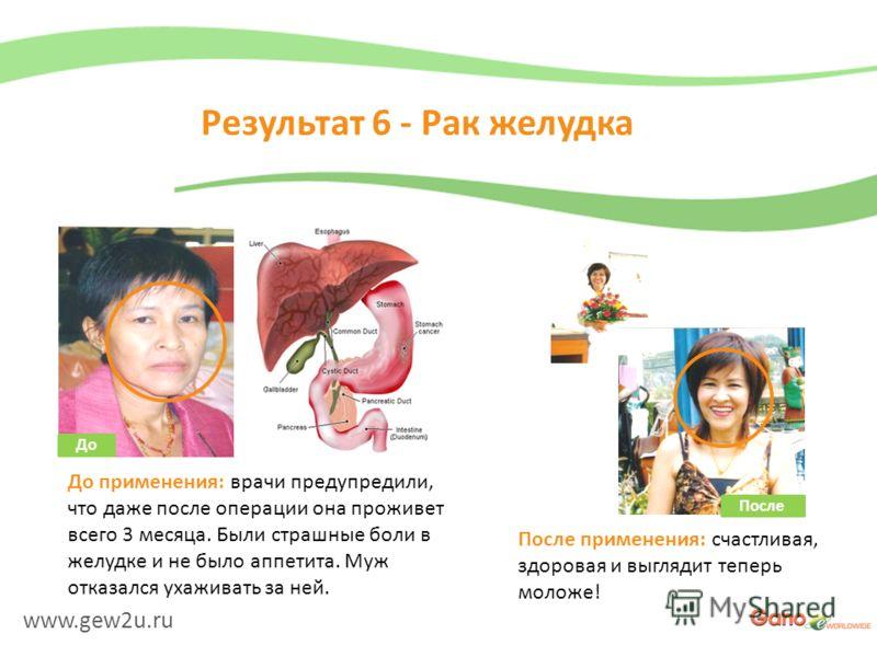 www.gew2u.ru Результат 6 - Рак желудка После применения: счастливая, здоровая и выглядит теперь моложе! До применения: врачи предупредили, что даже после операции она проживет всего 3 месяца. Были страшные боли в желудке и не было аппетита. Муж отказ