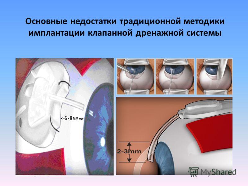 Основные недостатки традиционной методики имплантации клапанной дренажной системы