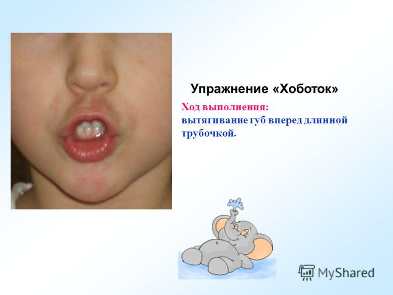 Упражнение «Хоботок» Ход выполнения: вытягивание губ вперед длинной трубочкой.