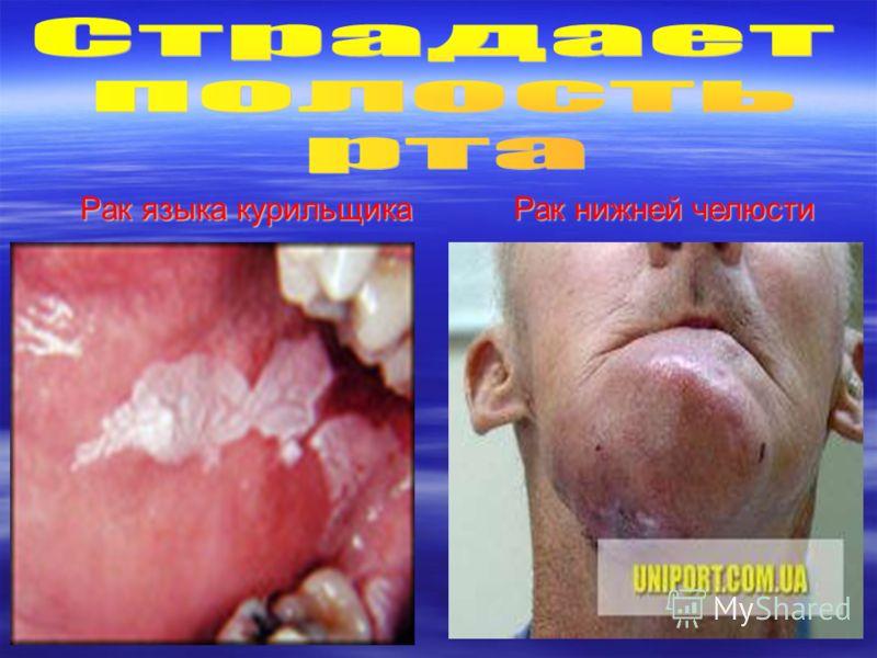 Рак языка курильщика Рак нижней челюсти