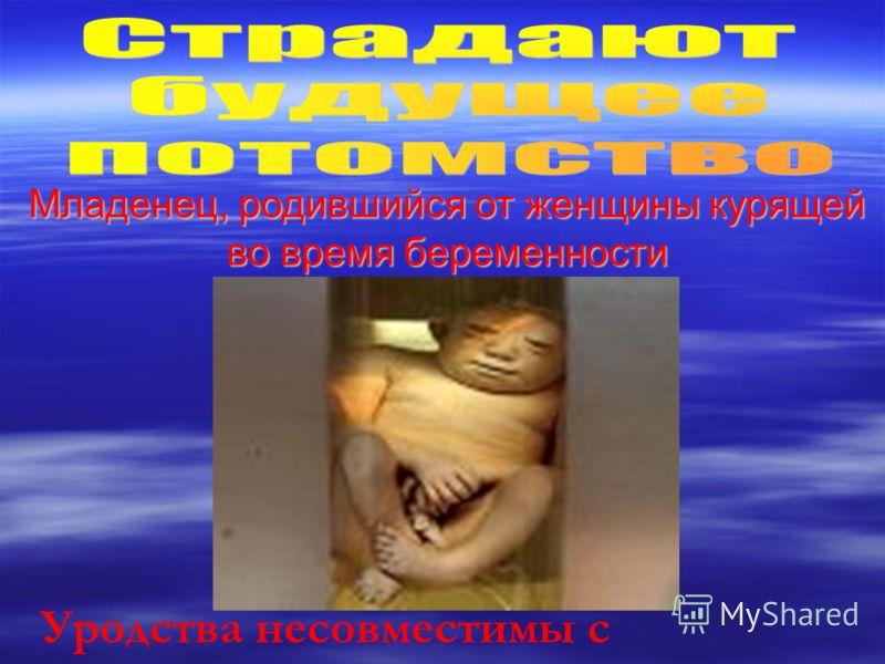 Младенец, родившийся от женщины курящей во время беременности Уродства несовместимы с жизнью…