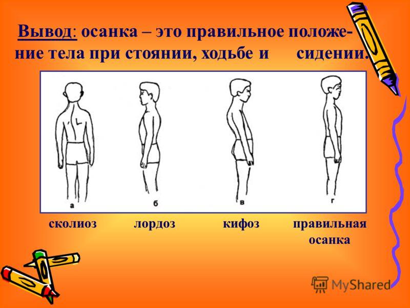 Вывод: осанка – это правильное положе- ние тела при стоянии, ходьбе и сидении. сколиозлордозкифозправильная осанка
