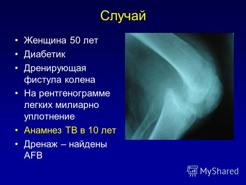 Случай Женщина 50 лет Диабетик Дренирующая фистула колена На рентгенограмме легких милиарно уплотнение Анамнез TB в 10 лет Дренаж – найдены AFB