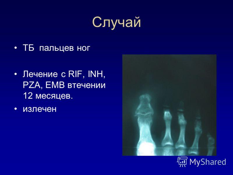 Случай TБ пальцев ног Лечение с RIF, INH, PZA, EMB втечении 12 месяцев. излечен