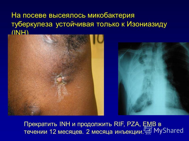 На посеве высеялось микобактерия туберкулеза устойчивая только к Изониазиду (INH) Прекратить INH и продолжить RIF, PZA, EMB в течении 12 месяцев. 2 месяца инъекции.