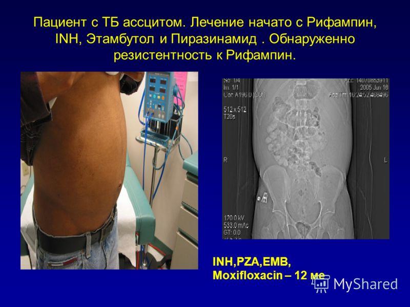 Пациент с ТБ ассцитом. Лечение начато с Рифампин, INH, Этамбутол и Пиразинамид. Обнаруженно резистентность к Рифампин. INH,PZA,EMB, Moxifloxacin – 12 ме