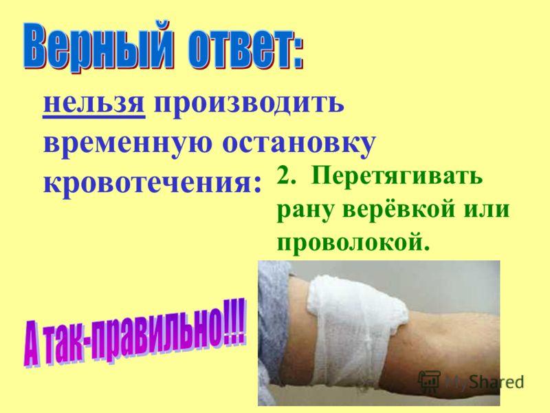2. Перетягивать рану верёвкой или проволокой. нельзя производить временную остановку кровотечения: