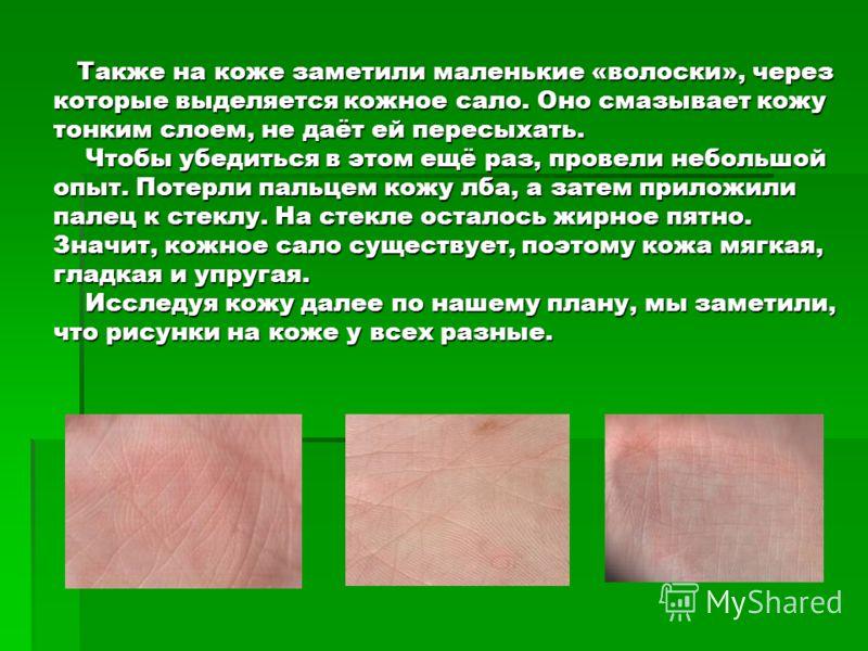 Также на коже заметили маленькие «волоски», через которые выделяется кожное сало. Оно смазывает кожу тонким слоем, не даёт ей пересыхать. Чтобы убедиться в этом ещё раз, провели небольшой опыт. Потерли пальцем кожу лба, а затем приложили палец к стек