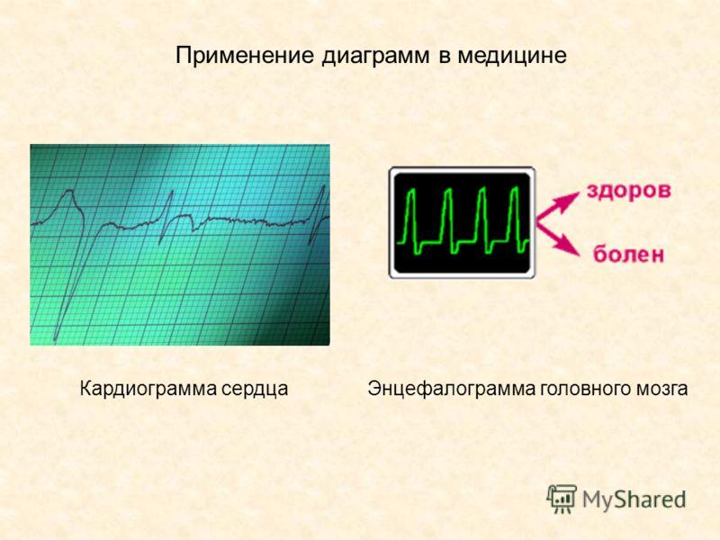 Кардиограмма сердцаЭнцефалограмма головного мозга Применение диаграмм в медицине