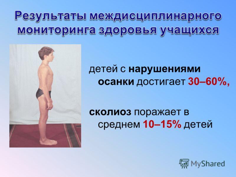 детей с нарушениями осанки достигает 30–60%, сколиоз поражает в среднем 10–15% детей