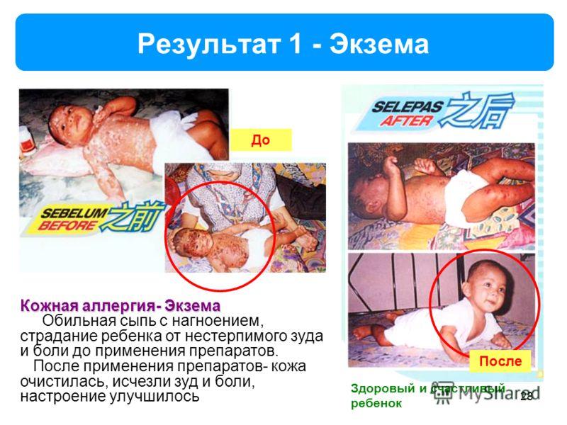 Результат 1 - Экзема Здоровый и счастливый ребенок 28 Кожная аллергия- Экзема Обильная сыпь с нагноением, страдание ребенка от нестерпимого зуда и боли до применения препаратов. После применения препаратов- кожа очистилась, исчезли зуд и боли, настро