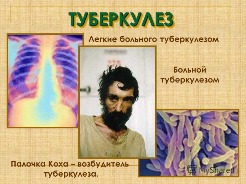 Легкие больного туберкулезом ТУБЕРКУЛЕЗТУБЕРКУЛЕЗ Палочка Коха – возбудитель туберкулеза. Больной туберкулезом