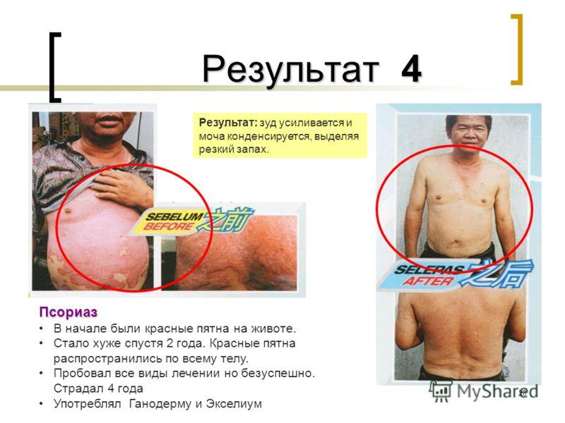 28 Результат 4 Результат 4 Псориаз В начале были красные пятна на животе. Стало хуже спустя 2 года. Красные пятна распространились по всему телу. Пробовал все виды лечении но безуспешно. Страдал 4 года Употреблял Ганодерму и Экселиум Результат: зуд у