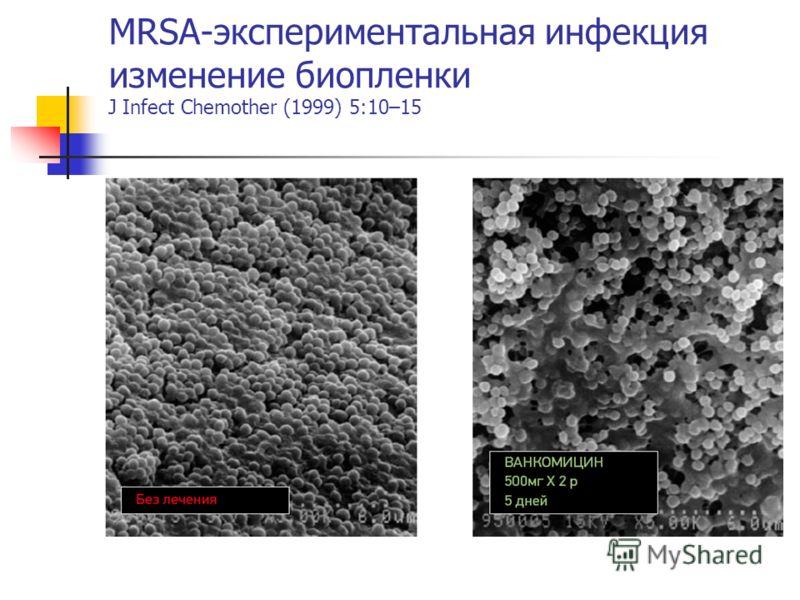 MRSA-экспериментальная инфекция изменение биопленки J Infect Chemother (1999) 5:10–15