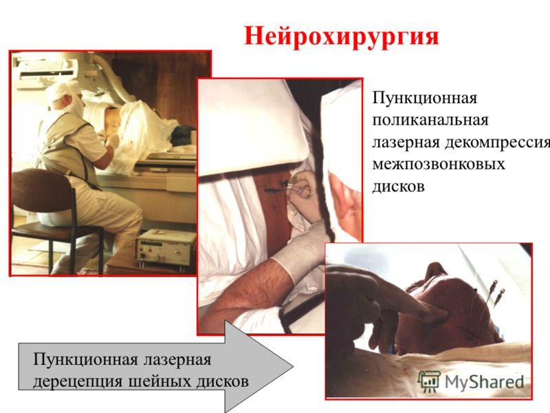 Нейрохирургия ЛАЗЕРНЫЙ СКАЛЬПЕЛЬ Пункционная поликанальная лазерная декомпрессия межпозвонковых дисков Пункционная лазерная дерецепция шейных дисков