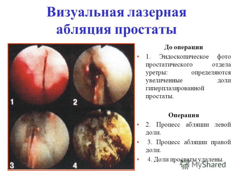Визуальная лазерная абляция простаты До операции 1. Эндоскопическое фото простатического отдела уретры: определяются увеличенные доли гиперплазированной простаты. Операция 2. Процесс абляции левой доли. 3. Процесс абляции правой доли. 4. Доли простат