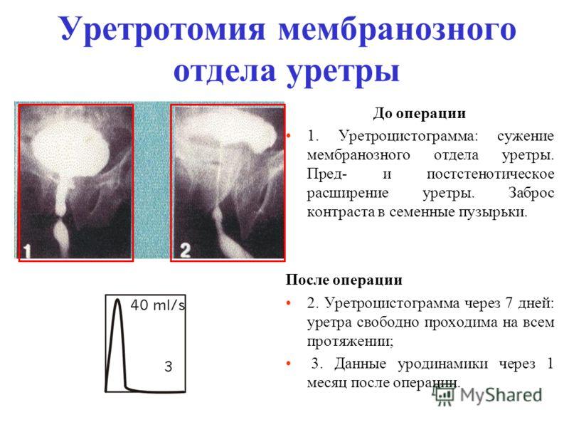 Уретротомия мембранозного отдела уретры До операции 1. Уретроцистограмма: сужение мембранозного отдела уретры. Пред- и постстенотическое расширение уретры. Заброс контраста в семенные пузырьки. После операции 2. Уретроцистограмма через 7 дней: уретра
