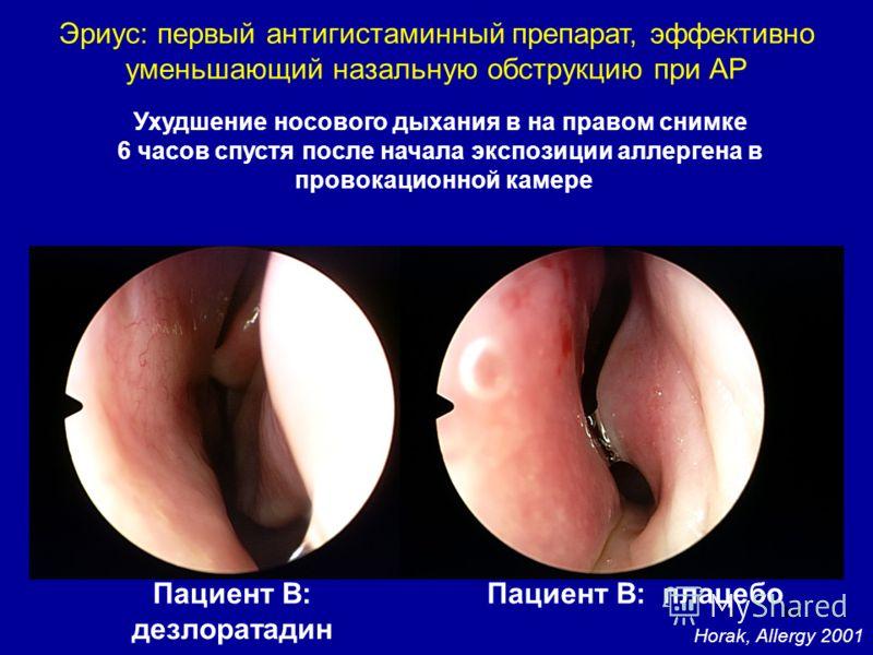 49 Horak, Allergy 2001 Ухудшение носового дыхания в на правом снимке 6 часов спустя после начала экспозиции аллергена в провокационной камере Пациент В: дезлоратадин Пациент В: плацебо Эриус: первый антигистаминный препарат, эффективно уменьшающий на